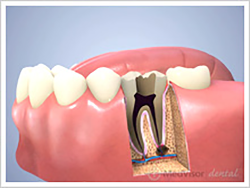 虫歯について