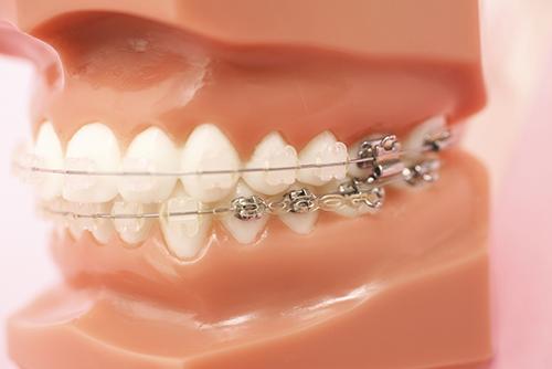 歯に金具(ブラケット)を付け、ワイヤーを通して治療を行います。