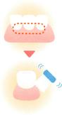 歯と歯ぐきの境目